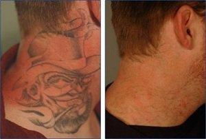 Como remover tatuagem a laser