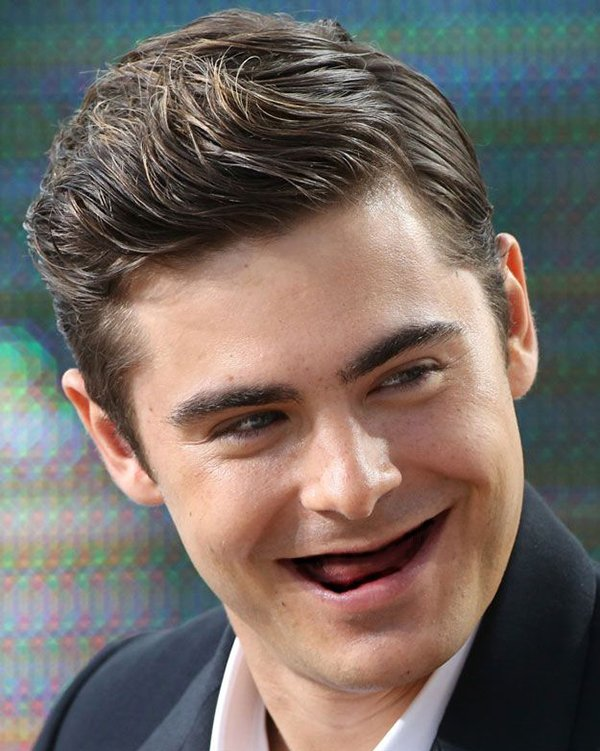 actors-with-no-teeth-zac-efron