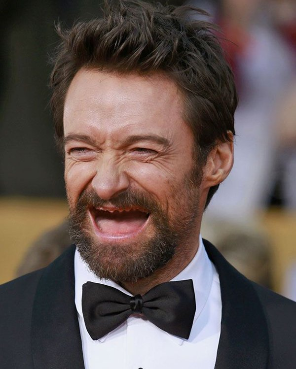 hugh-jackman-no-teeth