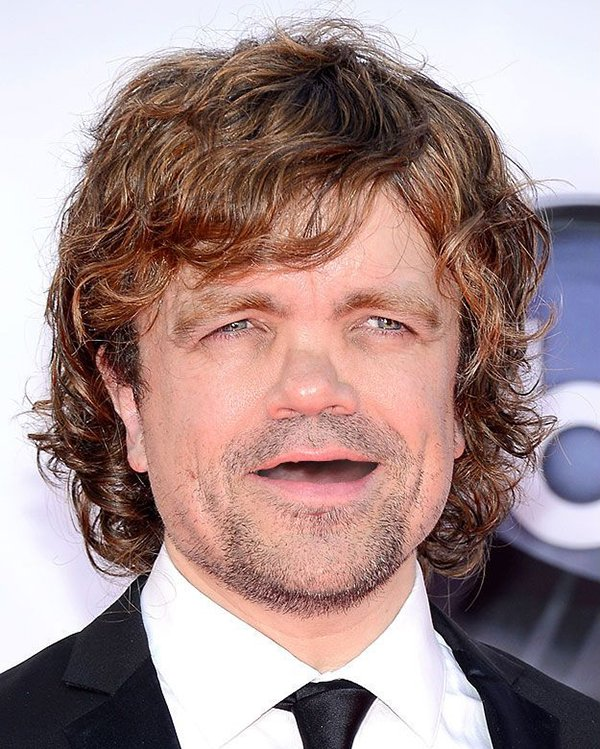 peter-dinklage-no-teeth