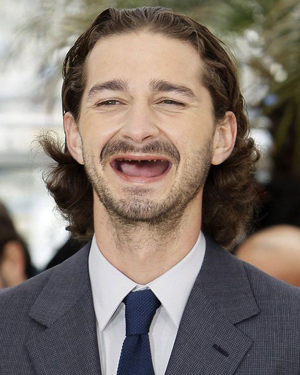 shia-no-teeth