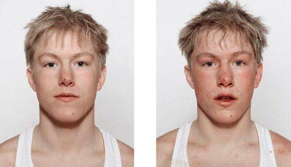 Antes e depois da briga (10)