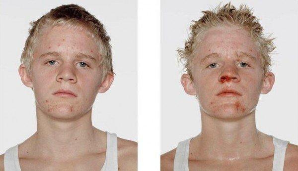 Antes e depois da briga (12)