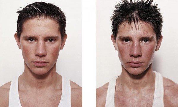 Antes e depois da briga (3)