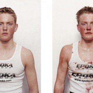 Antes e depois da briga 6
