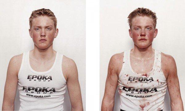 Antes e depois da briga