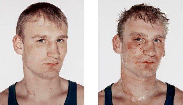 Antes e depois da briga (9)