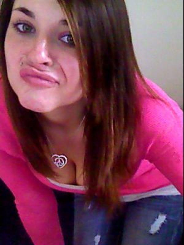 um-estudo-sobre-a-doenca-do-duckface-12