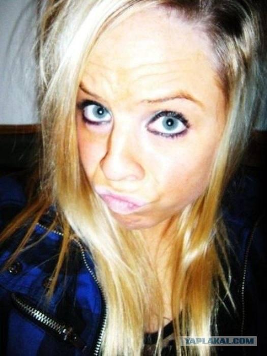 um-estudo-sobre-a-doenca-do-duckface-3