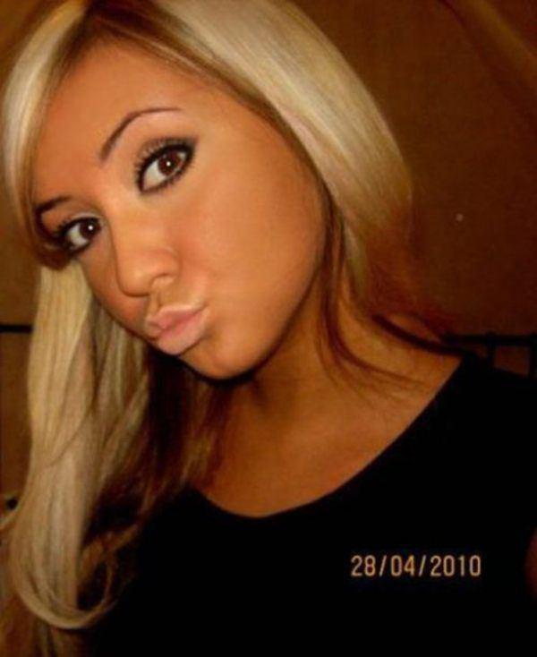 um-estudo-sobre-a-doenca-do-duckface-7