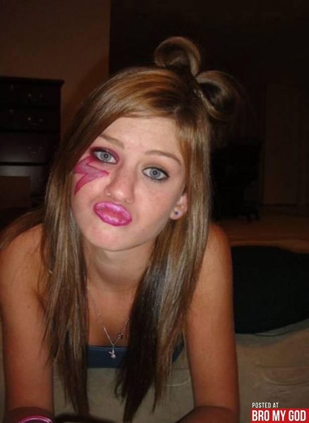 um-estudo-sobre-a-doenca-do-duckface-9