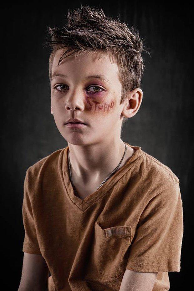 Palavras machucam assim como agressoes fisicas (1)