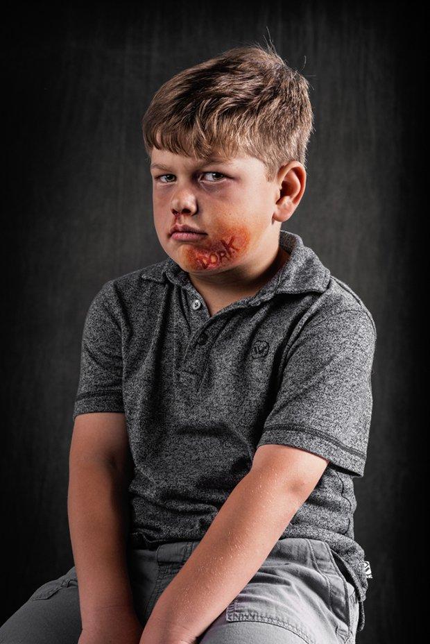 Palavras machucam assim como agressoes fisicas (17)