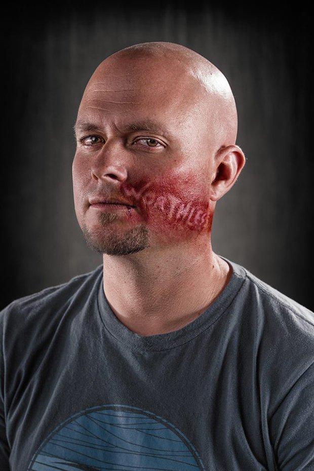 Palavras machucam tanto quanto agressões fisicas
