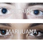 Como ficam os olhos de pessoas sob efeito das drogas