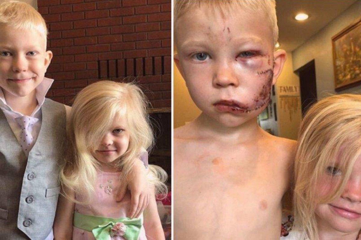 Bridger Walker: em tarde de herói, garoto salva irmã de ataque de cão e leva 90 pontos no rosto