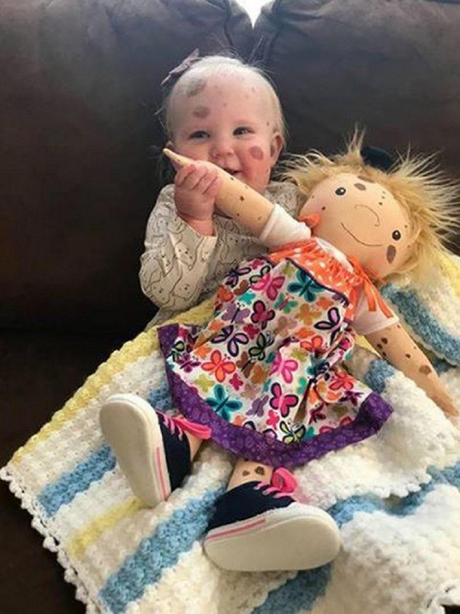 Amy Jandrisevits artista cria bonecas especiais para criancas especiais e ensina sobre aceitacao e respeito 1