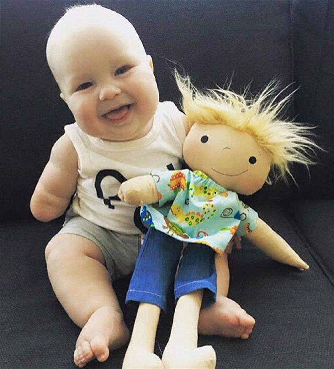 Amy Jandrisevits artista cria bonecas especiais para criancas especiais e ensina sobre aceitacao e respeito 5
