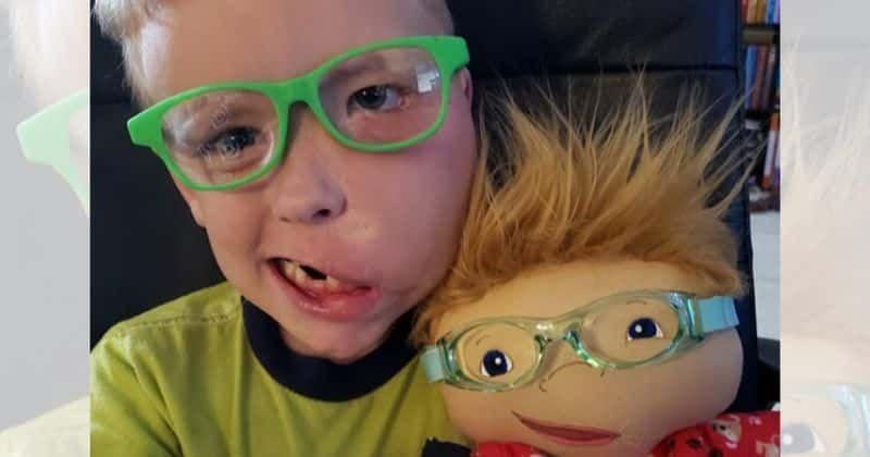 Amy Jandrisevits artista cria bonecas especiais para criancas especiais e ensina sobre aceitacao e respeito 6