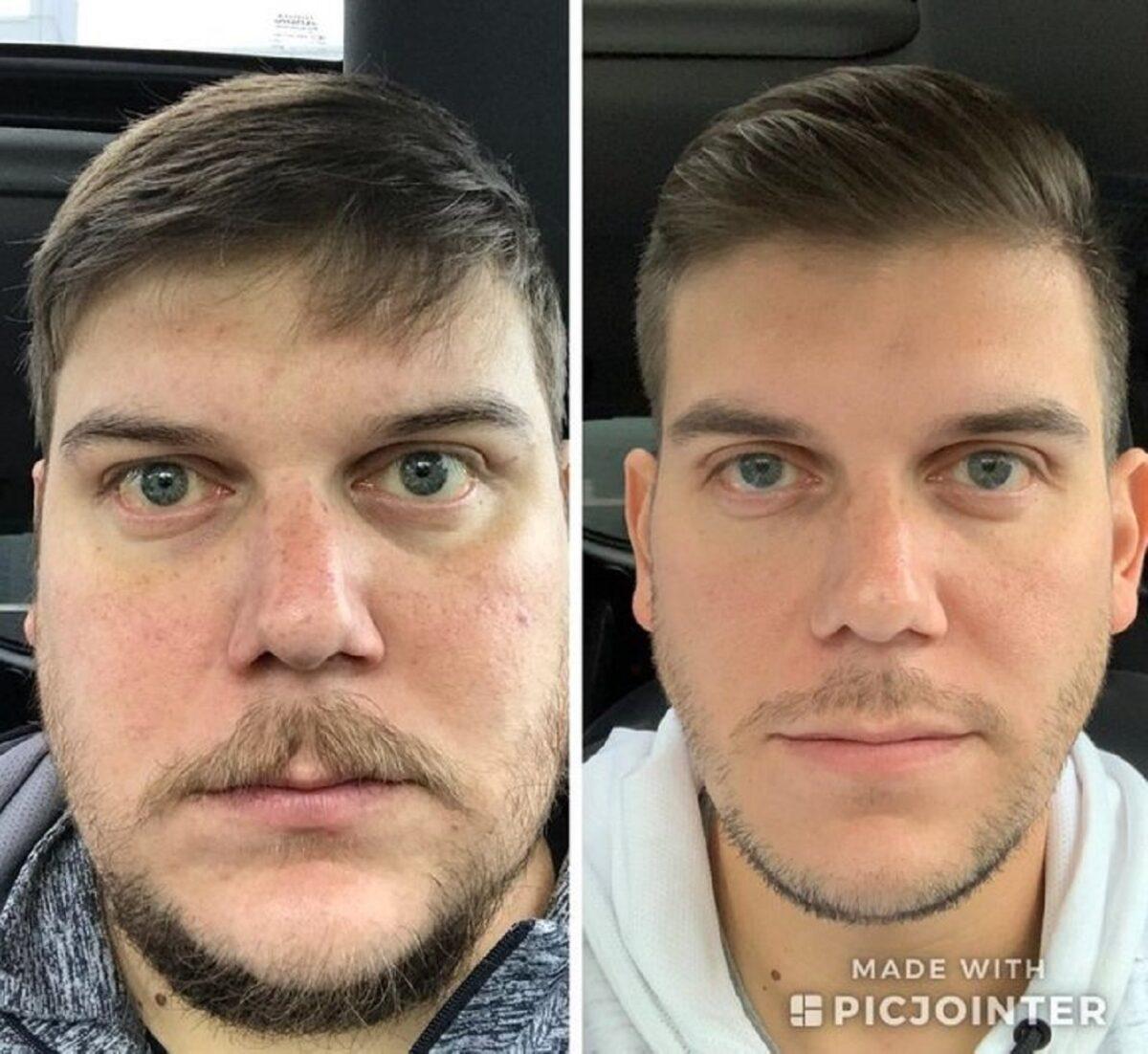 Imagens de antes e depois que mostram que nao devemos temer a passagem do tempo 14