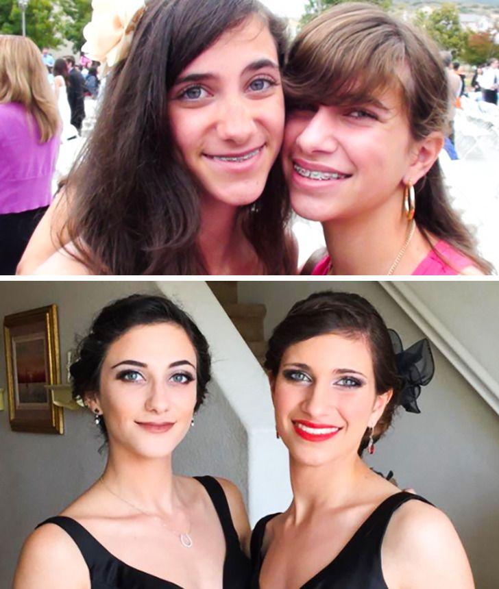 Imagens de antes e depois que mostram que nao devemos temer a passagem do tempo 25