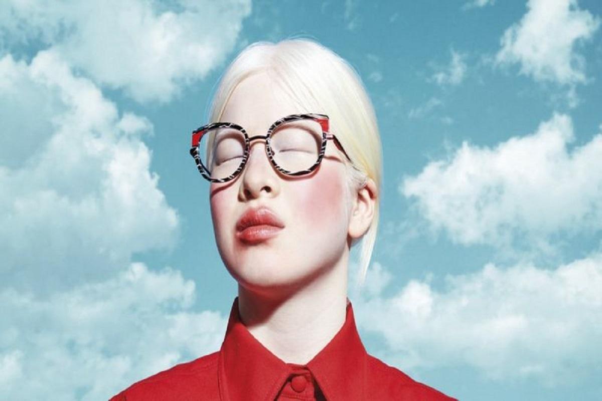 Xueli Abbing a chinesa albina modelo da Vogue que foi abandonada quando bebe 2